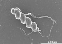 ヘリコバクター・スイスの電子顕微鏡写真(国立感染症研究所提供)
