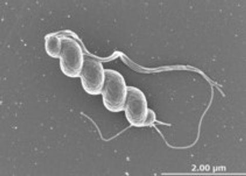 「スイス菌」の培養に成功 ヒトから初、病原性も証明